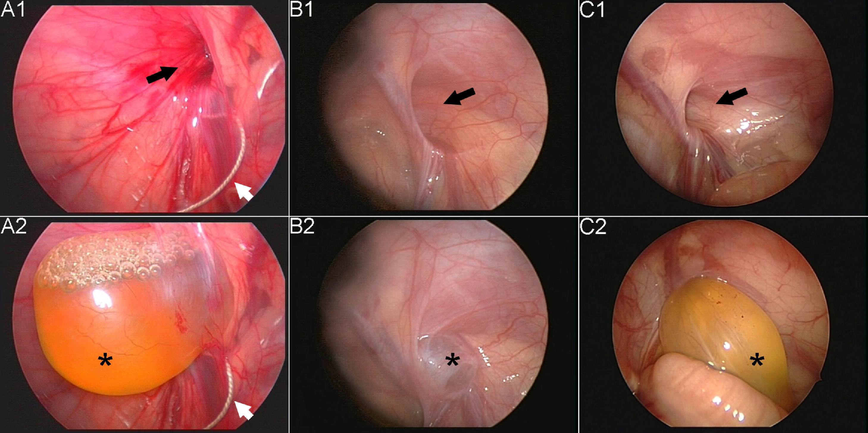 Hydrocele Of The Spermatic Cord In Infants And Children