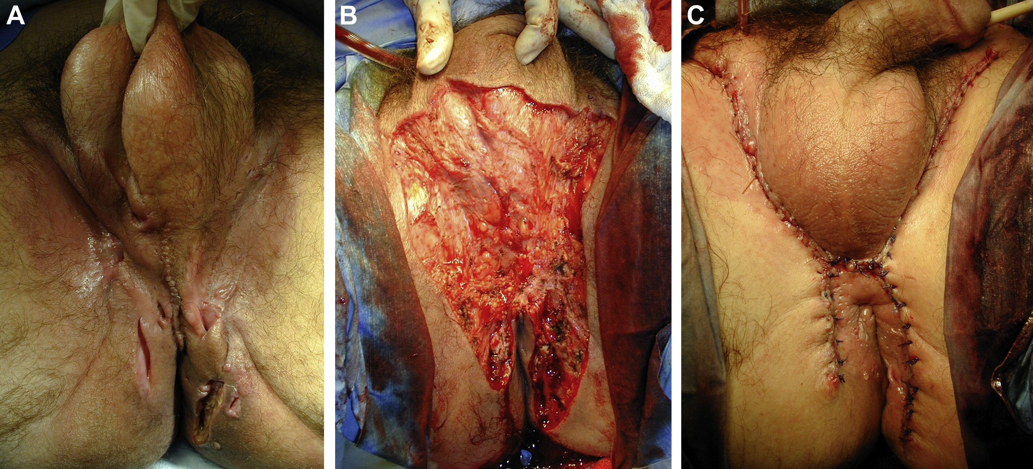 Surgical Management Of Genitoperineal Hidradenitis